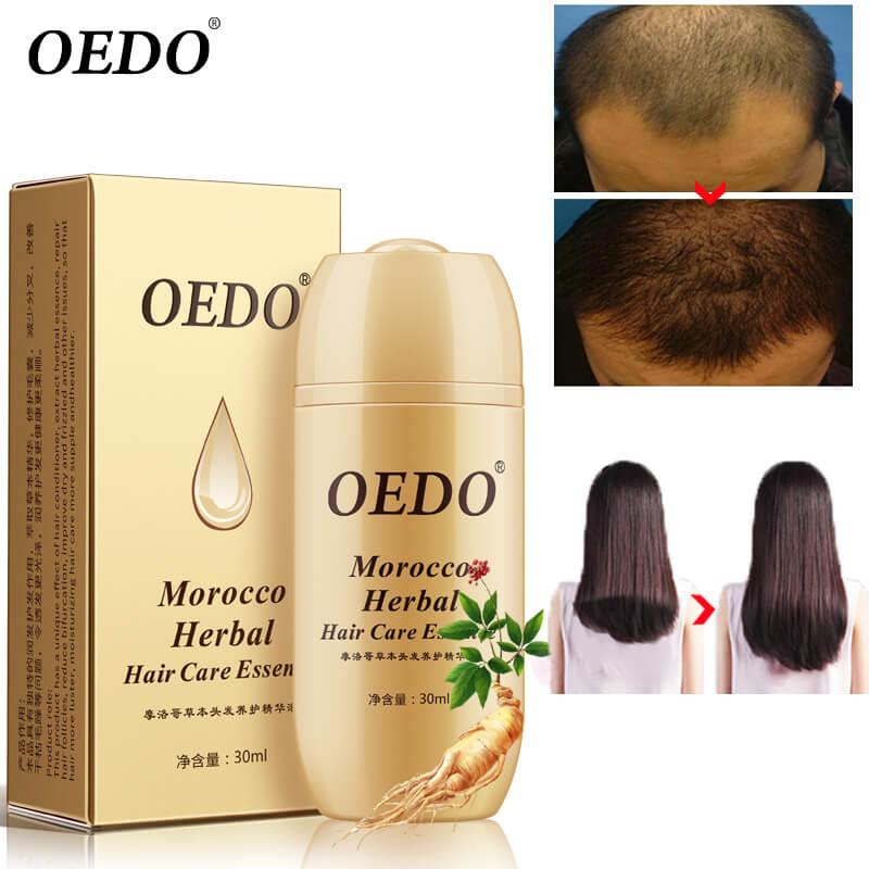 Лосион за растеж и сгъстяване на коса OEDO